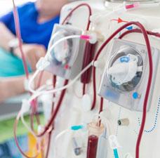 dialysis-conten