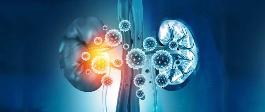 Is Diabetes a Leading Cause of Kidney Disease? 1