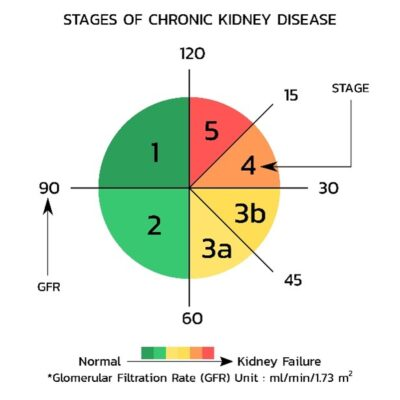 All About Kidney Disease Stages, Symptoms and Treatment 1
